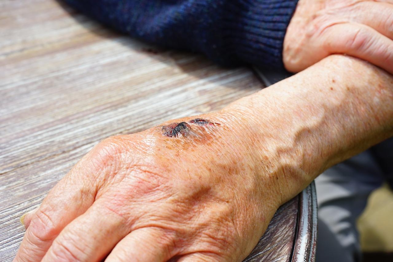 Die Anatomie des Handgelenks - Schmerzen im Handgelenk